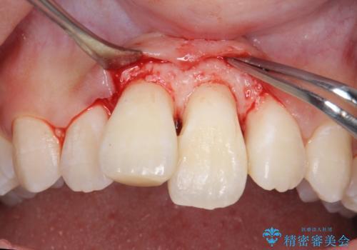 出っ歯をセラミックで治したい の治療中