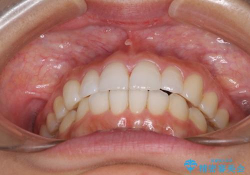 口が閉じにくい 1本飛び出した前歯の矯正治療の治療後