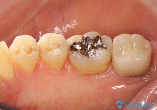 一番奥歯の後ろに虫歯が 処置の難しい虫歯の症例 治療後