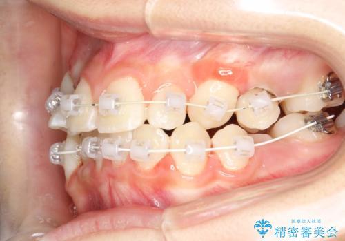 永久歯が生えてこない ワイヤー矯正で複雑な状態を正常咬合へ誘導するの治療中