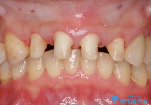 前歯の虫歯 つぎはぎの歯をセラミックにの治療中