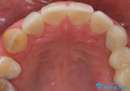 前歯の虫歯 つぎはぎの歯をセラミックにの治療後