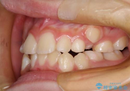永久歯が生えてこない ワイヤー矯正で複雑な状態を正常咬合へ誘導するの治療前