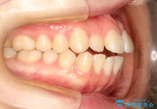 前歯がガタガタ・噛み切りにくい インビザラインによる歯を抜かない矯正の治療前