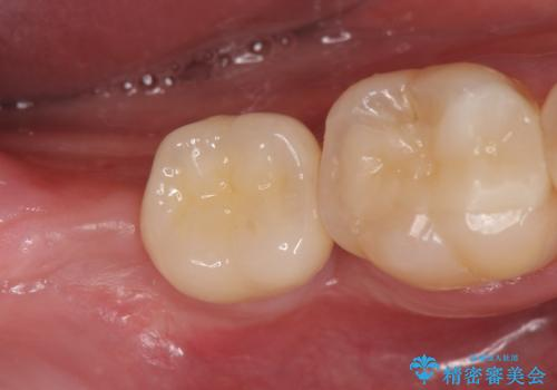 [20代男性] インプラント 失った歯の治療の治療後