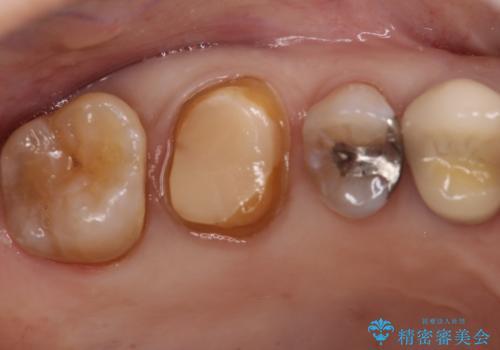セラミッククラウンによるむし歯治療の治療中