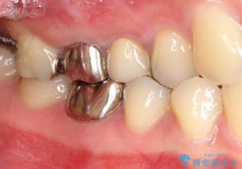 歯周外科・根管治療による長期予後を期待する奥歯の治療の症例 治療前