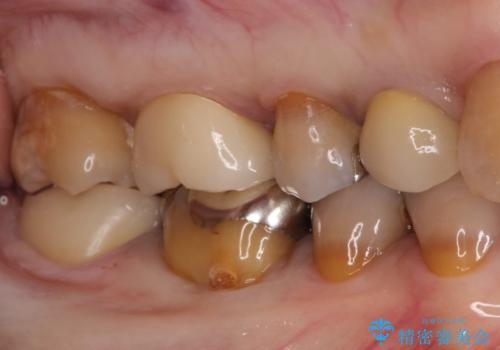 奥歯クラウン(オールセラミック)の症例 治療後