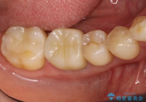咬んだ時の違和感 顕微鏡で発見された歯の穴を処置し、かみ合わせを回復するの症例 治療後