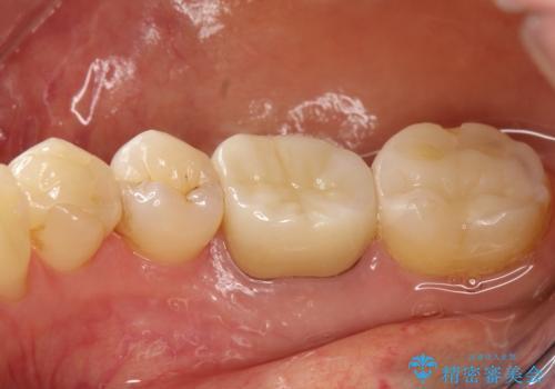 咬んだ時の違和感 顕微鏡で発見された歯の穴を処置し、かみ合わせを回復するの治療後