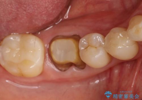 咬んだ時の違和感 顕微鏡で発見された歯の穴を処置し、かみ合わせを回復するの治療中