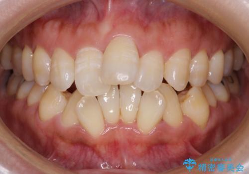 40代女性 前歯の重なり あきらめずに矯正の症例 治療前