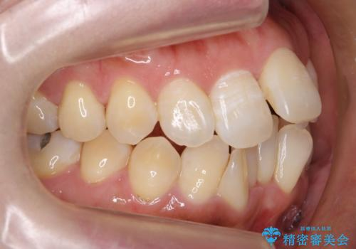 40代女性 前歯の重なり あきらめずに矯正の治療前