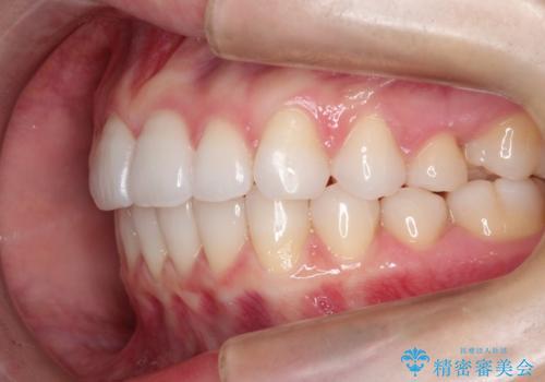 インビザラインで出っ歯を改善する 抜歯をしないinvisalign治療の治療後