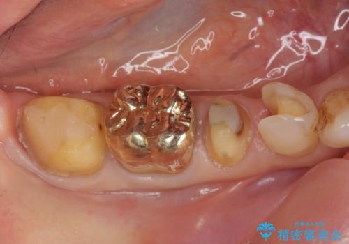 オールセラミッククラウン PGA(ゴールド)クラウン 古い銀歯の治療の治療中