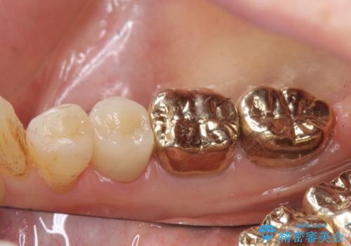 オールセラミッククラウン PGA(ゴールド)クラウン 古い銀歯の治療の治療後
