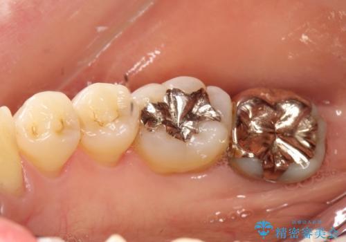 一番奥歯の後ろに虫歯が 処置の難しい虫歯の症例 治療前