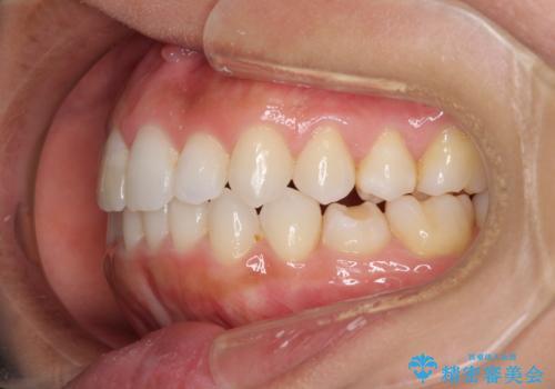 前歯の叢生を治したい インビザラインによる矯正治療の治療後