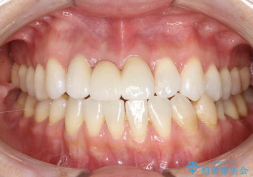 前歯がぐらぐらする 抜歯→ブリッジへ の症例 治療後