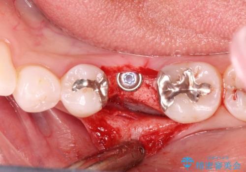 深い虫歯により抜歯となった奥歯 インプラント治療でかみ合わせを回復するの治療中