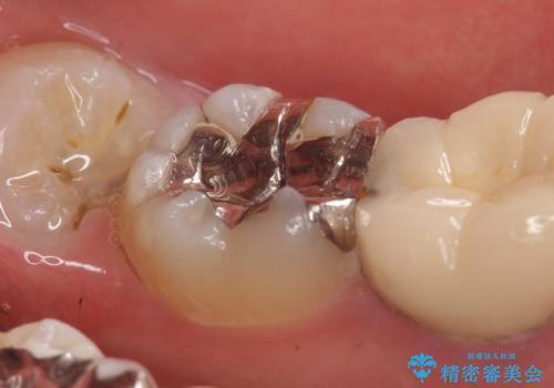セラミックインレー 古い銀歯の治療の治療前