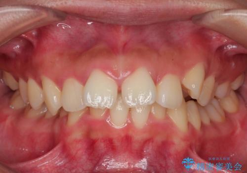 シビアな前突症・過蓋咬合 インビザラインで改善する invisalignの治療前