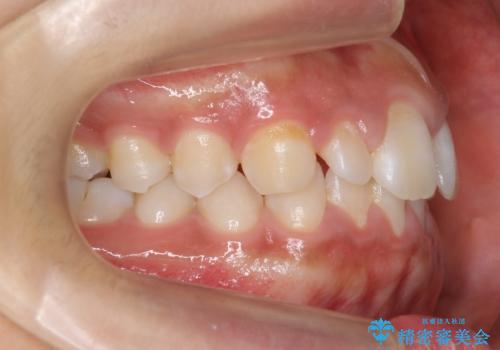 前歯のすきま 矯正治療とセラミックで小さな歯を形良くの治療前