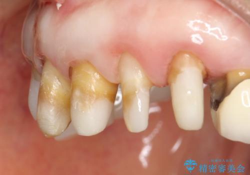 前歯の低クオリティな治療の実態 妥協無い治療で根本からやり治すの治療後