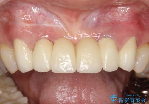 前歯のブリッジの見栄えが悪い→見えないところからしっかりとやり直しをの症例 治療後