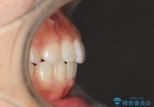 人生が変わる 困難を極める咬合状態に歯列矯正単独で挑戦するの治療後