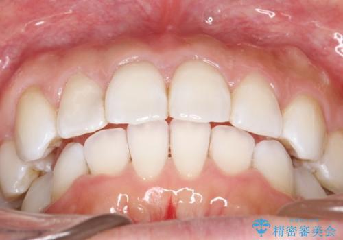 抜歯せずに八重歯のマウスピース矯正の治療後