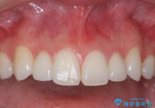 矮小歯 インビザラインとセラミックで美しくの治療後