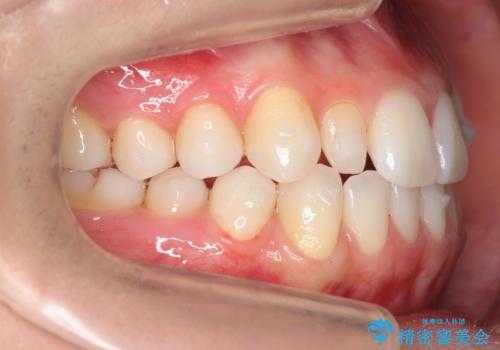 矮小歯 インビザラインとセラミックで美しくの治療中