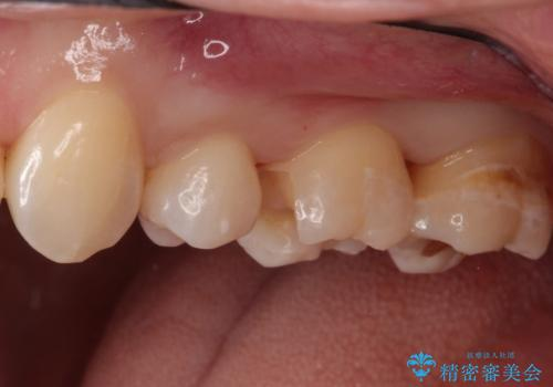 一度治療した歯が虫歯に セラミックインレーで治療の治療中