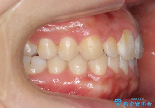 前歯のすきま 矯正治療とセラミックで小さな歯を形良くの治療後
