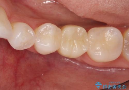 深い虫歯により抜歯となった奥歯 インプラント治療でかみ合わせを回復するの治療後