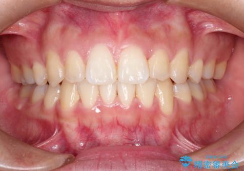 前歯が八重歯でガタガタ ワイヤーによる抜歯矯正の症例 治療後