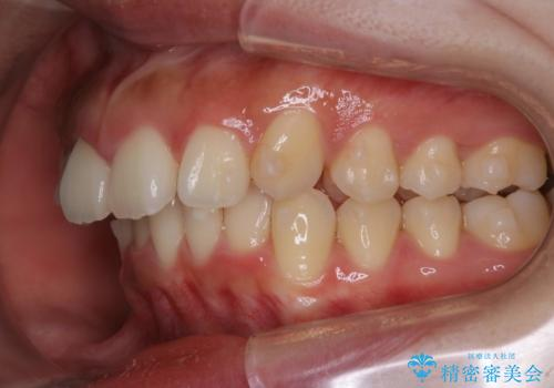 シビアな前突症・過蓋咬合 インビザラインで改善する invisalignの治療中