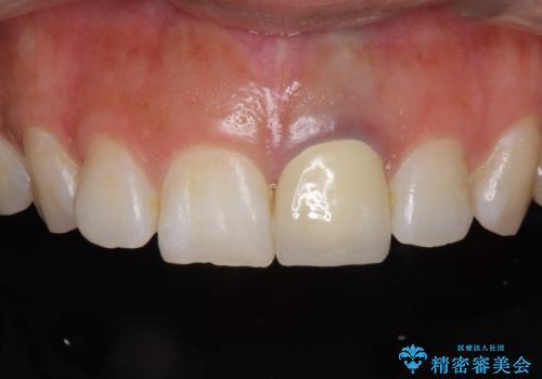 前歯のメタルをセラミックにしたい 歯自体が変色している場合の参考用の治療後