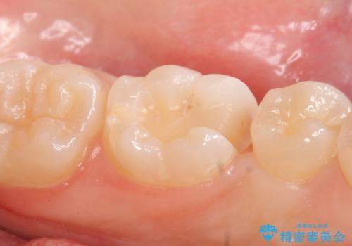 セラミックインレー しみる歯の治療の治療中