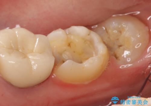 セラミックインレー 古い銀歯の治療の治療中