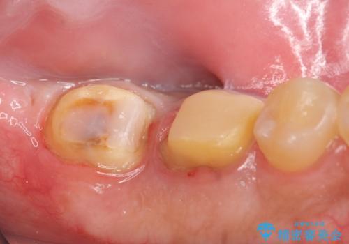 歯冠長延長術を併用した審美的歯科治療の治療中