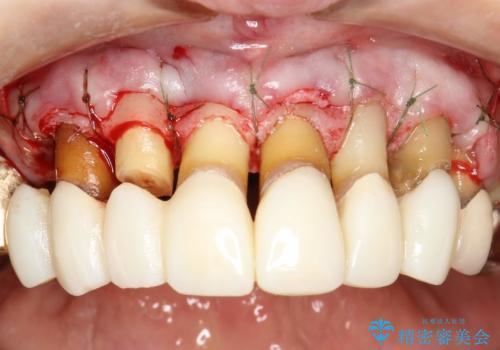 前歯の低クオリティな治療の実態 妥協無い治療で根本からやり治すの治療中