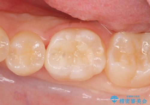 セラミックインレー しみる歯の治療の症例 治療後