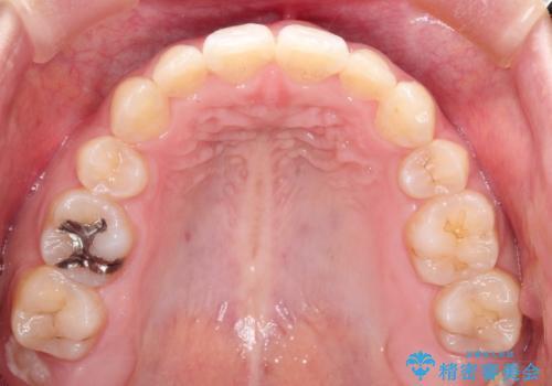 前歯が八重歯でガタガタ ワイヤーによる抜歯矯正の治療後