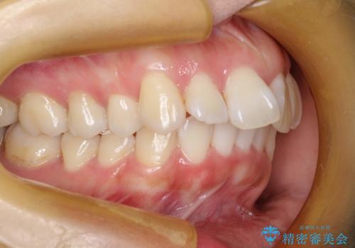 抜歯をして前歯を下げ、ガタつきを取り除く ワイヤー矯正の治療前