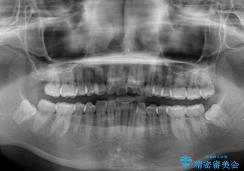 口が閉じにくい 1本飛び出した前歯の矯正治療の治療前