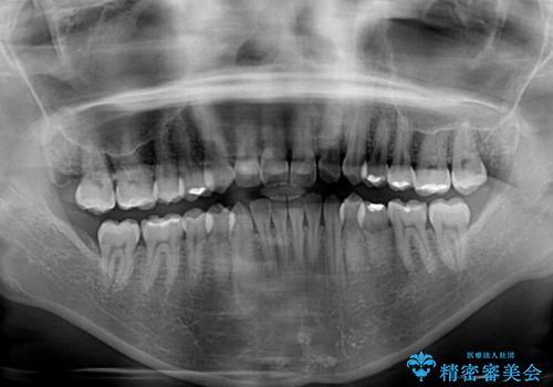 前歯の叢生を治したい インビザラインによる矯正治療の治療前