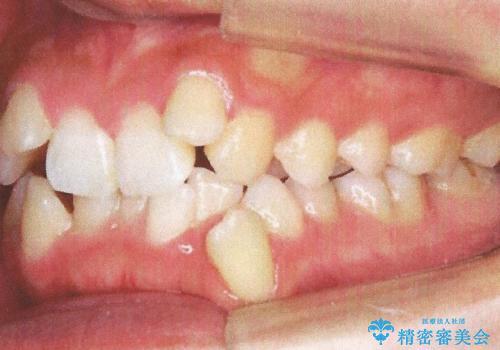 前歯が八重歯でガタガタ ワイヤーによる抜歯矯正の治療前