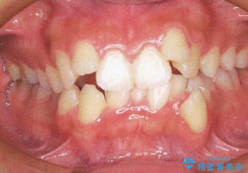 前歯が八重歯でガタガタ ワイヤーによる抜歯矯正の症例 治療前
